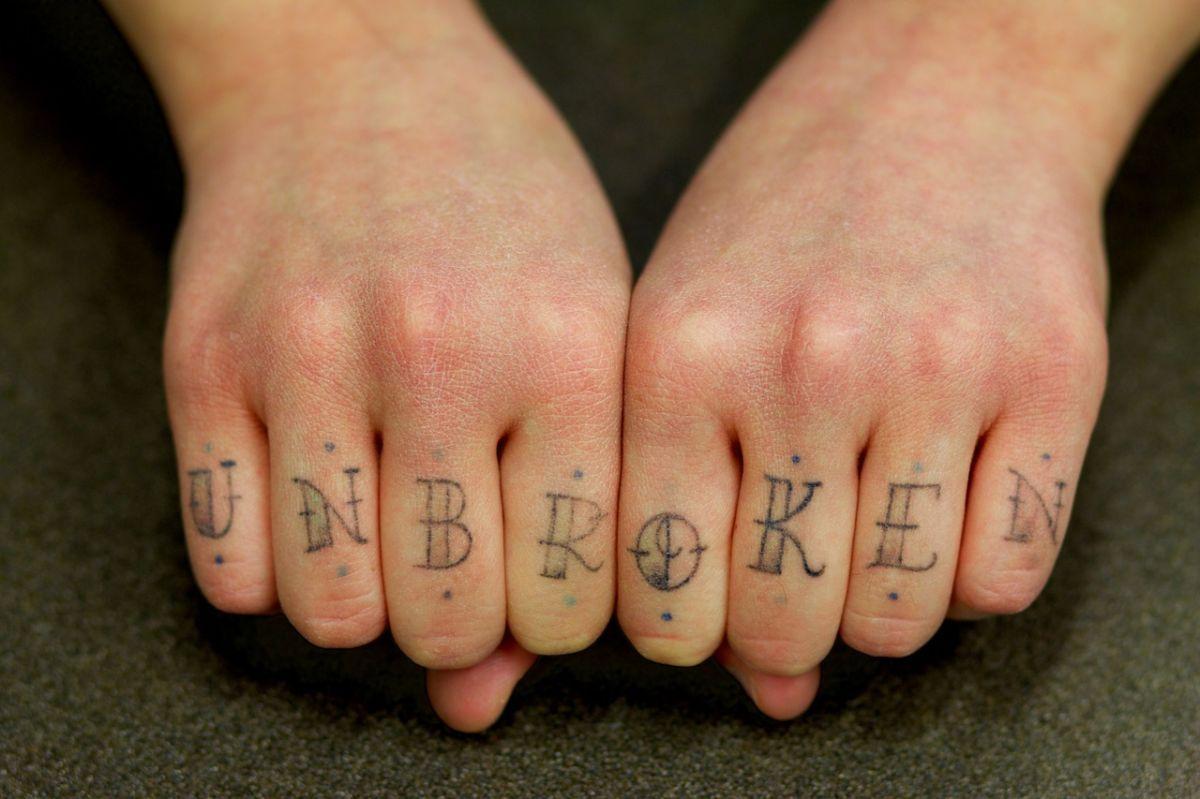 Jak Bezpiecznie I Skutecznie Usunąć Tatuaż Medycyna